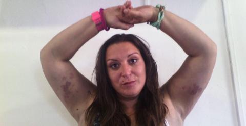 Imagen de Isabel un día después de haber denunciado la agresión de la escolta de Monago