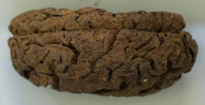 Uno de los cerebros 'saponizados' en la fosa de represaliados republicanos de La Predraja, Burgos.- SERRULLA ET ALL