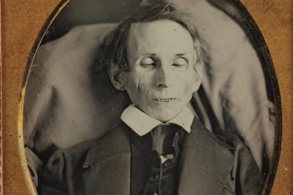 Imagen 'post mortem' de un hombre ya fallecido. - Cedida