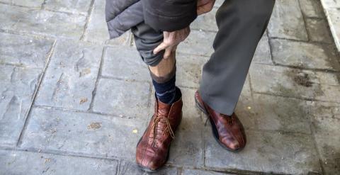Un hombre muestra una cicatriz producto de una herida por torturas.