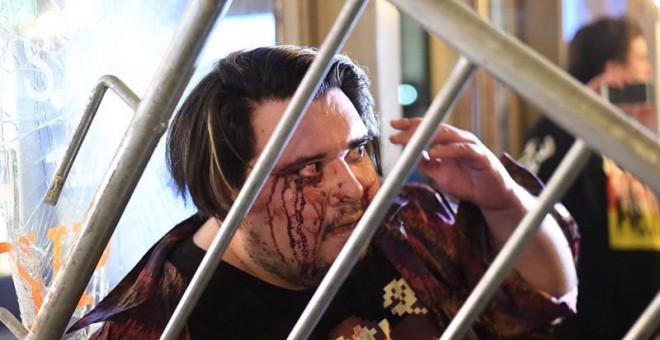 Un estudiante herido durante las violentas manifestaciones. | NOAH BERGER (EFE)