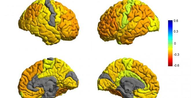 Representación de cerebros con trastorno bipolar