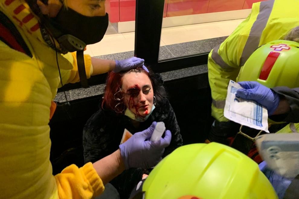 Foto de la mujer herida por una bala foam en la protesta por la encarcelación de Pablo Hasél.