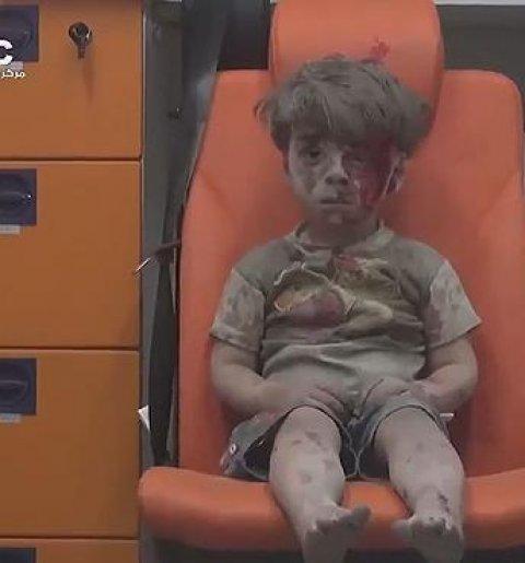 Omar Daqneesh, niño sirio superviviente de un bombardeo, se ha convertido en la imagen de la guerra siria/TWITTER