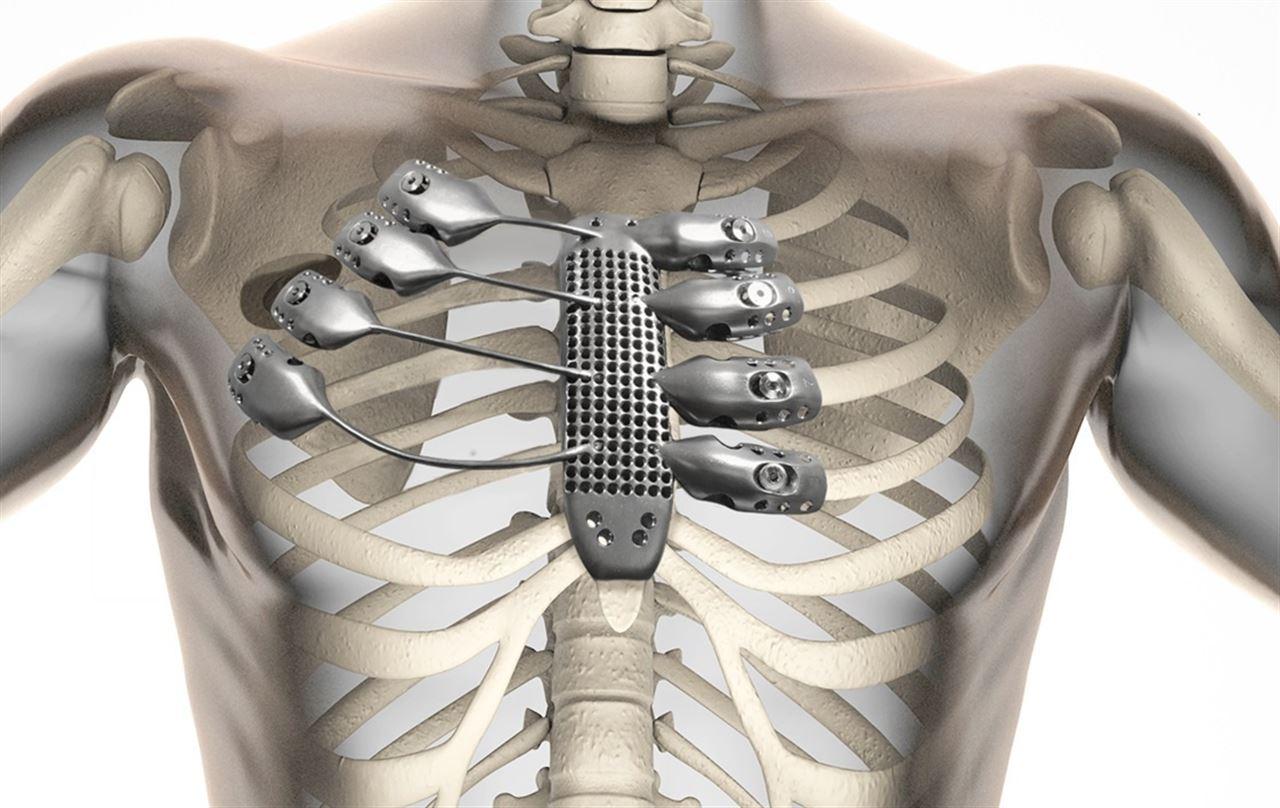 Implantan a un paciente español una caja torácica y un esternón ...