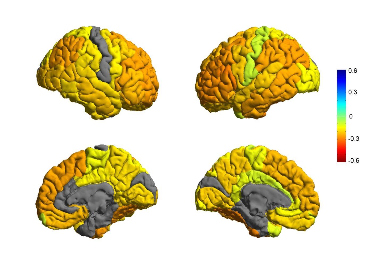 enfermedades cerebrales sin cura