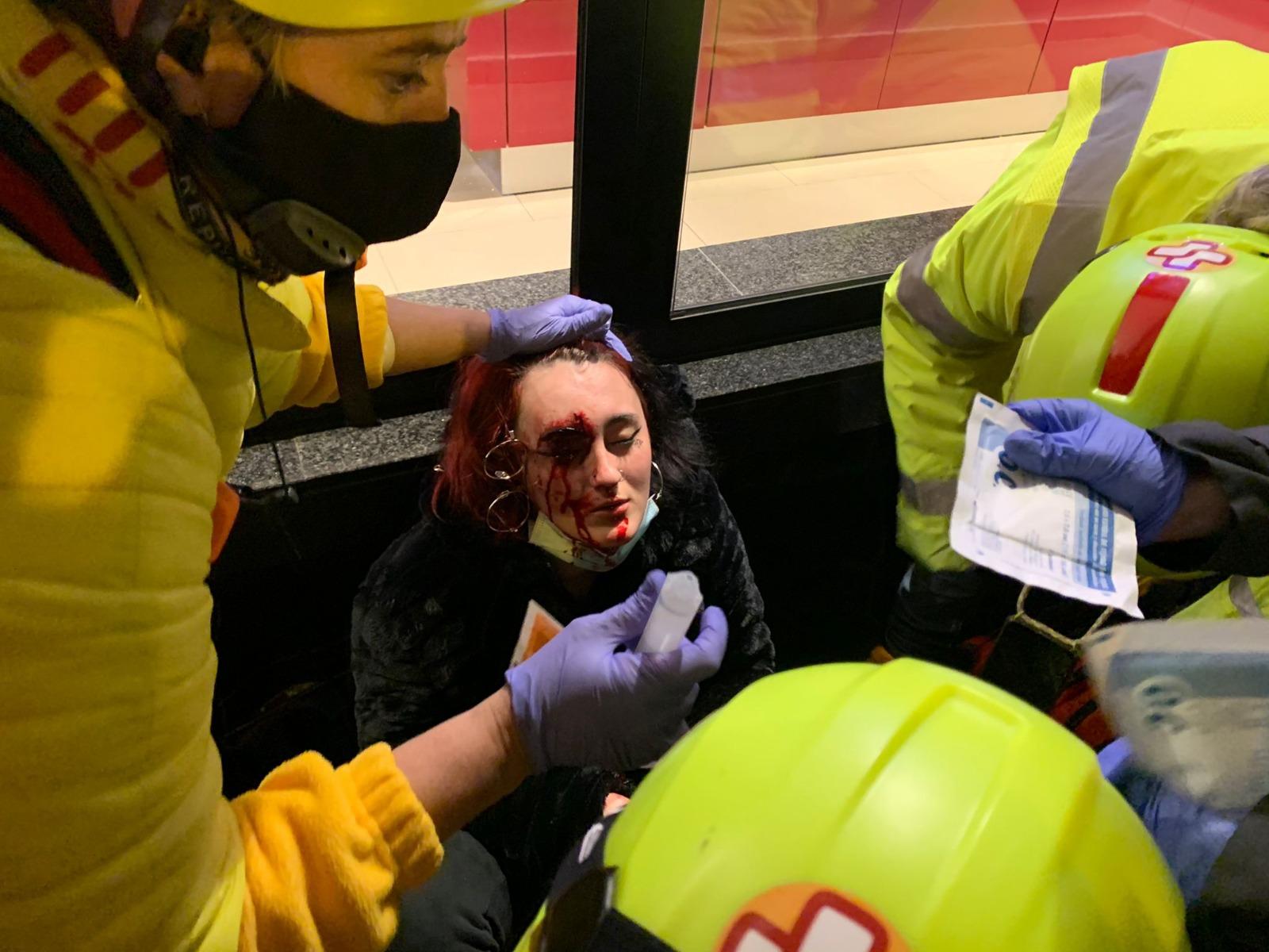 Resultado de imagen para mujer herida en el ojo en protesta en barcelona por arresto de pablo hasel
